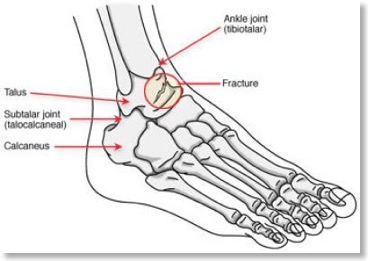core knowledge  talus fractures